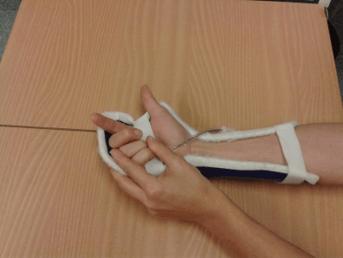 Handschiene für Funktionsverbesserung